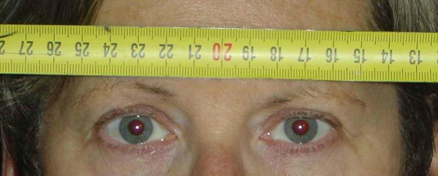 mesurer son ecart pupillaire